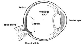 Vitreous gel removed during vitrectomy